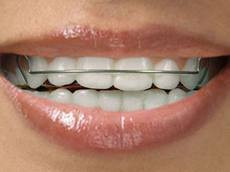Types of Retainers: After Braces Off