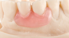 ThermoSens denture : Flexible Denture