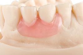 Ben K Dental Laboratory and Cutomize Denture in Penang