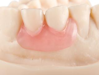 ThermoSens denture : Flexible Denture