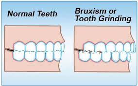 What is teeth grinding (bruxism)?