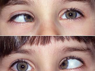 Los ojos, la visión y nuestra postura.