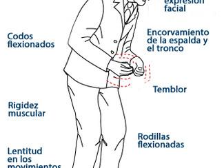 El Método Feldenkrais, un método de ejercicio prometedor para los enfermos de Parkinson.