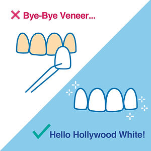 Bye Bye Veneers, Hello Holywood White