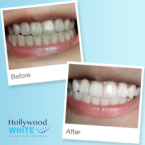 Before and After | Hollywood White