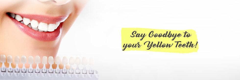 Goodbye to your yellow teeth - Hello Hollywood White