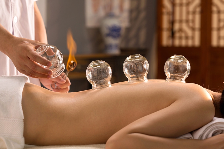 cupping and moving cupping service at yin yang acupuncture clinic