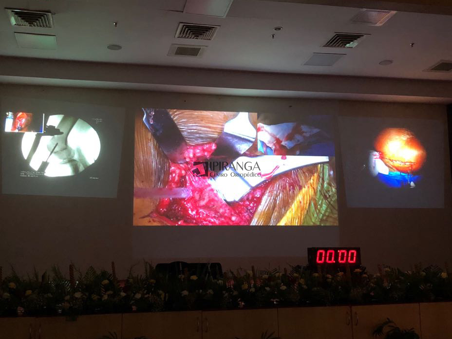 Transmissão ao vivo de cirurgia.