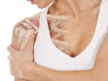 Ombros: quais as lesões mais comuns e como identificá-las