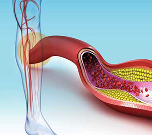 Prevenção de coágulos sanguíneos após cirurgia