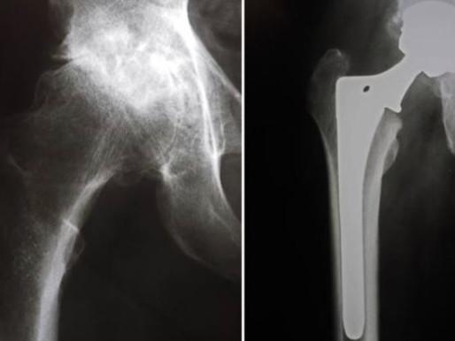 Artroplastia total de quadril (parte 2)