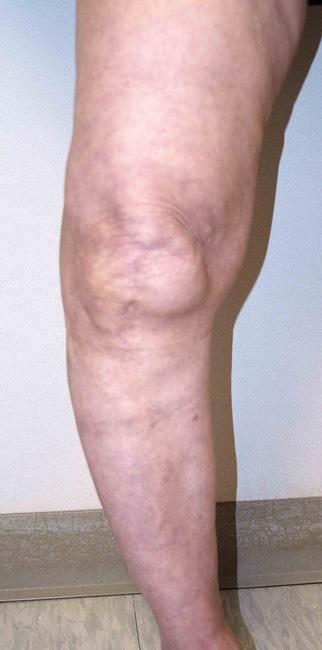 Deformidade do joelho arqueado.