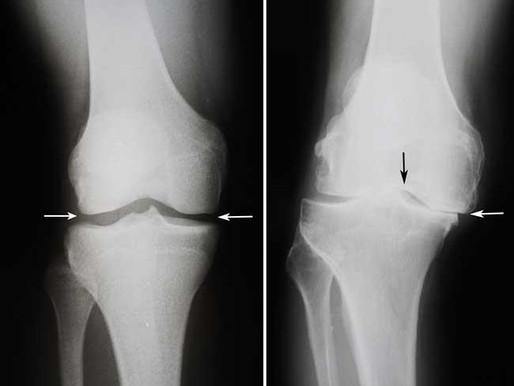 Artroplastia total de joelho (parte 1)