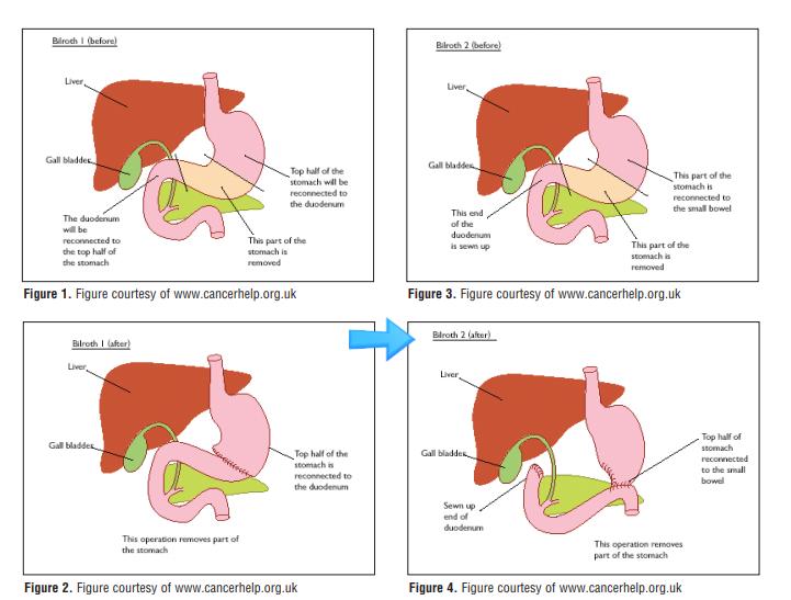 위암 수술 후 빈혈, 철결핍 혹은 다른 영양성 빈혈 (cobalamin (B12), folate)을 감별