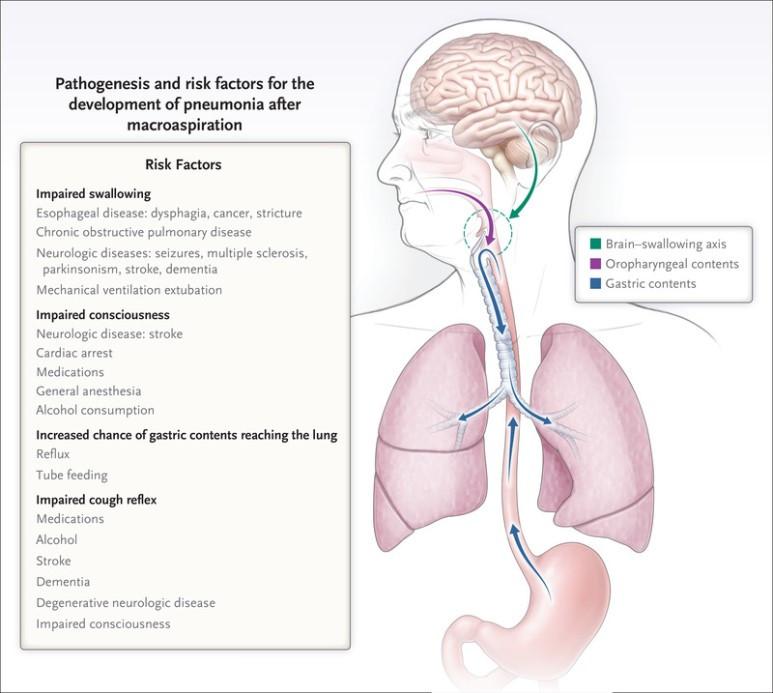 흡인성 폐렴, 가래 배양 검사에서 대장균 검출