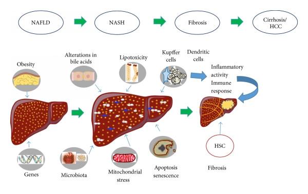 지방간, 지방간염; 체중 감량을 위한 노력이 선행되어야 합니다.