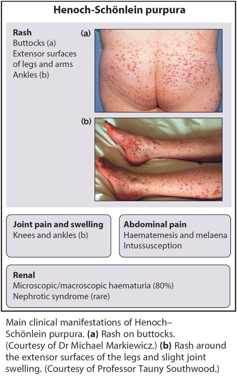 특발성 피부혈관염 (CSVV) 으로 생각하였으나 이번엔 헤노흐 쉔라인 자반증 (HSP) 로 내원; 복통, 관절통, 자반 증상