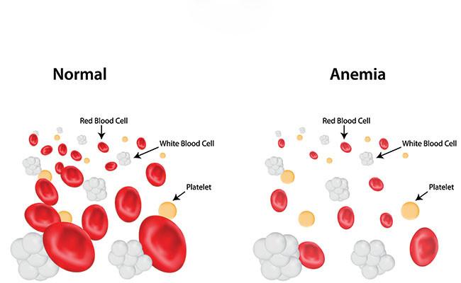철결핍성 빈혈, 경구 철분제 보충후 한달뒤 혈액 추적