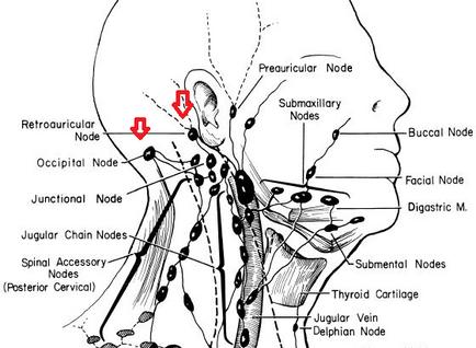 귀뒤 후두부 림프절염, 국소감염 의증