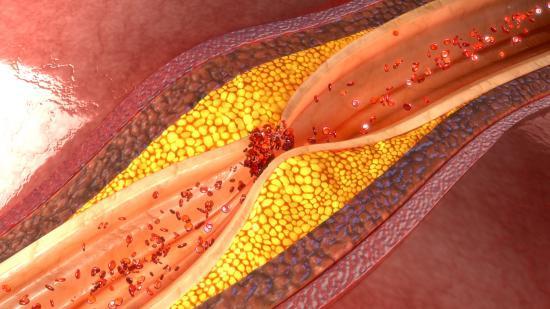 낮은 고밀도콜레스테롤, 높은 중성지방, 가족성 결합성 고지혈증 의증, 투약후 반응