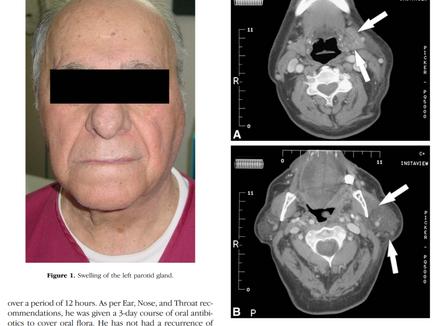 내시경 검사 후 침샘 부종 발생 사례, anesthesia mumps