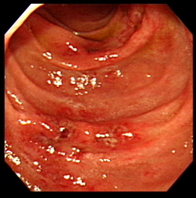 Henoch–Schönlein purpura, 헤노흐-쉔라인 자반증 환자의 복통에 대한 초음파, 내시경 평가