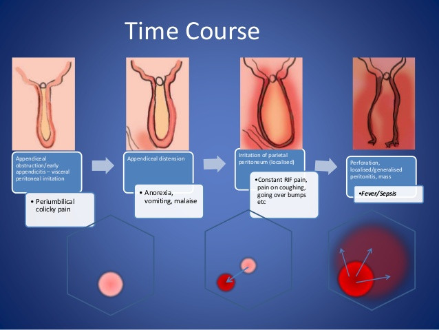 감시하에서 방관된 결과일까? 삼성전자 부회장의 안타까운 복막염 소식.. 대장까지 절제하는..; 충수돌기염 복기