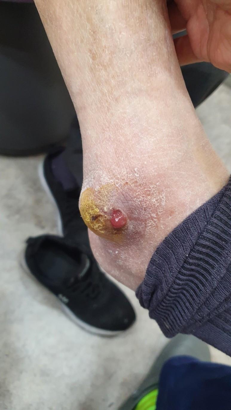 당뇨라고 주장하면서 타내과/정형외과 경유 방문한 피부 감염, 농양 (skin abscess)