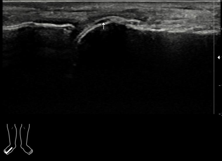 반복되는 MTP joint, 중족지절관절의 관절통 및 발적, 부종 호소, 전형적인 위치의 통풍, 초음파로 통풍결절 및 이중윤곽징후 확인
