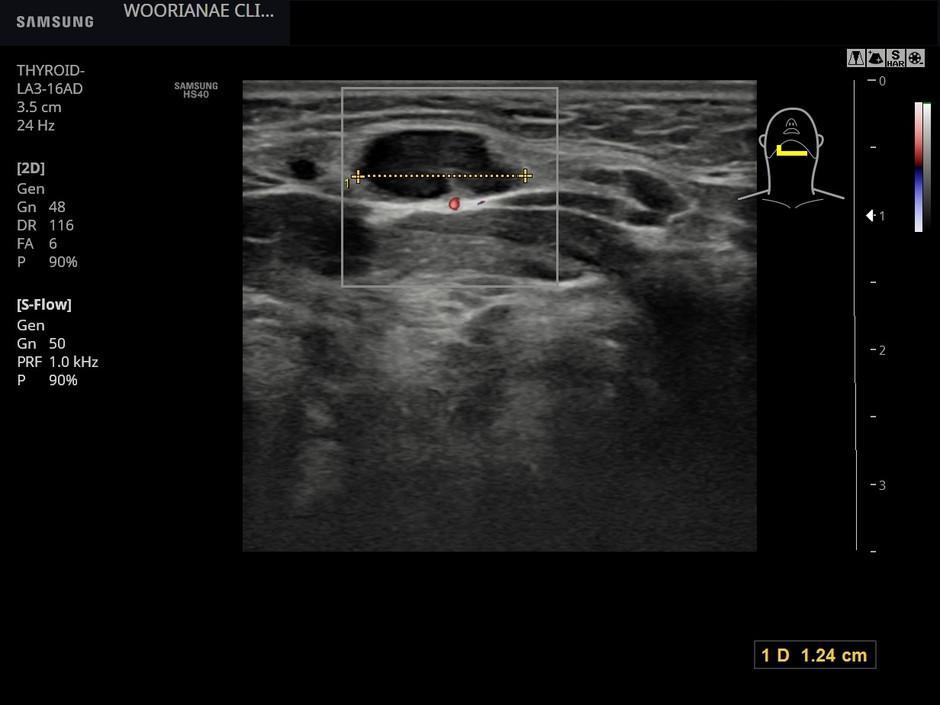 턱밑 림프절 비대를 동반한 구순 헤르페스, 반응성 림프절염?