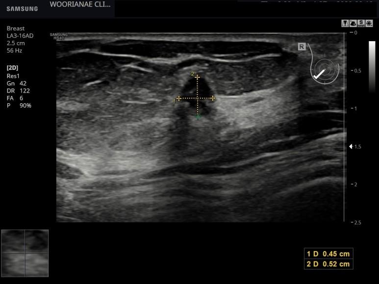 과거 유방촬영 치밀유방, 검진 유방 초음파에서 1cm 미만의 모양이 좋지 않은 종괴, BIRAD 4C, 조직검사 의뢰