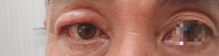 한쪽 눈이 부었다. 안와격막전 봉와직염 (preseptal cellulitis)