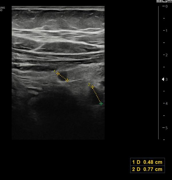 장간막림프절염; 우하복부 통증으로 충수돌기염과 구별이 필요합니다.