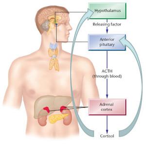이차 고혈압 검사, 쿠싱 증후군 의증; low dose dexametasone supression test, 덱사메타손 억제 검사 --> Pseudo-cushing, 가성 쿠싱
