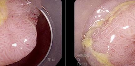 잠혈반응 양성, 20 mm 크기의 직장 용종, 완전절제