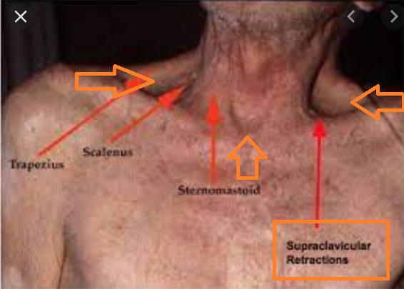 쇄골상, 흉골상 흡기성 함몰 (inspiratory retraction) 을 동반할 정도의 호흡곤란, 첫 증상으로 급성 천식 악화
