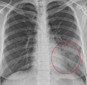 기침 한달간... 최근 소아과 투약하다 방문한 사례, 청진음은 이상없으나 영상의학적 폐렴