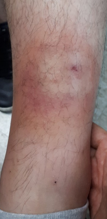 벌레 물린 후 발생한 봉와직염
