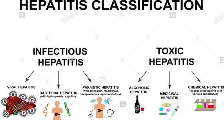 독성 간염, toxic hepatitis (술, 약제...)