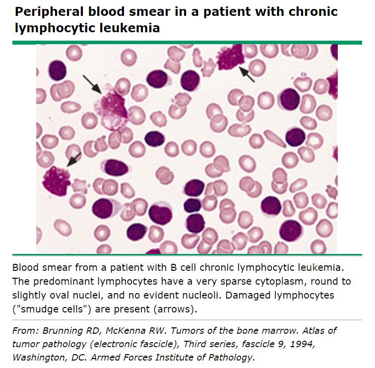 검진중 우연히 발견된, 재확인된 림프구증다증, 무증상.. 만성 림프구성 백혈구 감별위해 전원