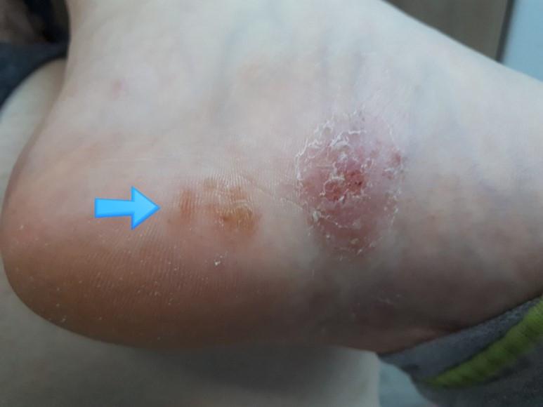 vesicular, vesicobulous type tinea pedis, 수포형 족부 백선, 손의 경우 손백선 혹은 감별로 dyshidrotic eczema (한포진)