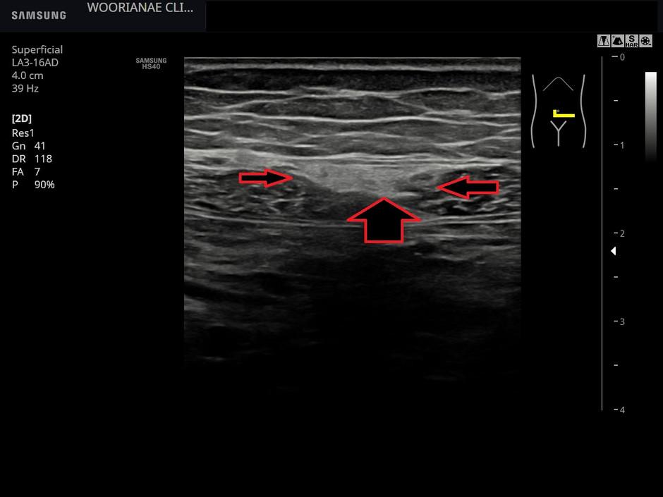 통증에 공감이 우선 필요했던... 하복부 복통/압통, 복직근 염좌 (rectus sheath strain)