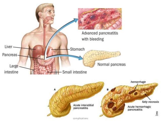급성 췌장염; 주로 술과 담석에 의하지만 매우 높은 고중성지방도 위험인자가 됩니다.