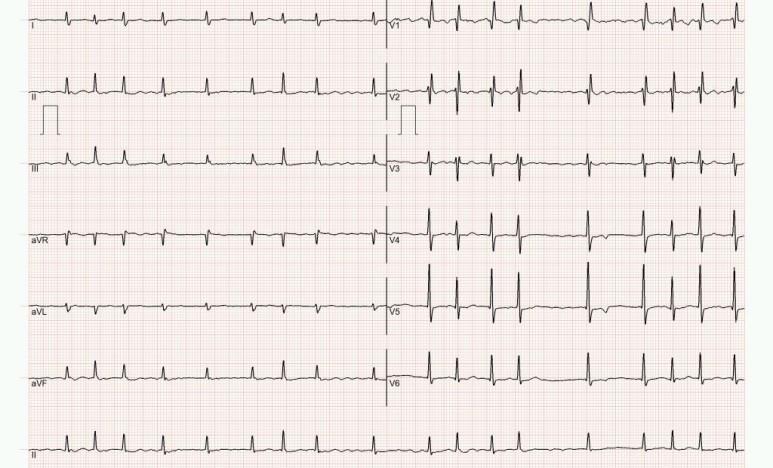 불규칙 맥박, 의외로 1년전 기외수축 (bigeminy) 이었으나 재검시 심방세동, 심장초음파 평가 후 항응고제 등 처방