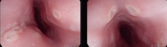 헤르페스 식도염; 연하통을 유발합니다.