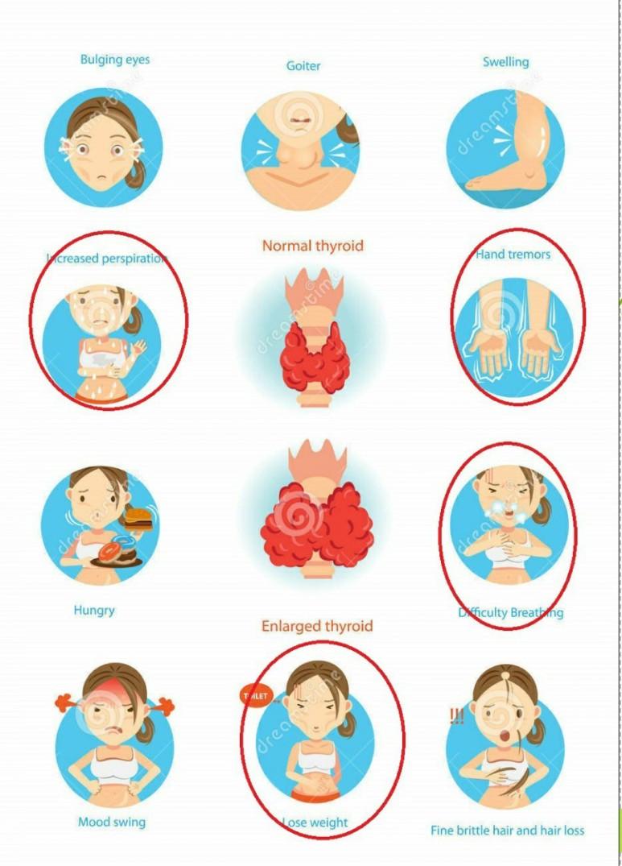 노작성 호흡곤란, 움직인 후 심한 발한, 두통, 잔떨림; 심한 갑상선 항진증 의심하여 확진