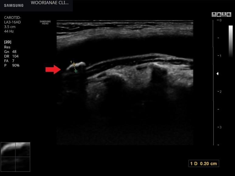 혈압 환자의 경동맥, 죽상경화반 진단