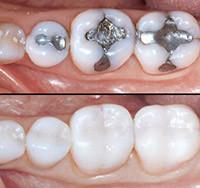 ¿Cambiar amalgama de plata por composite?