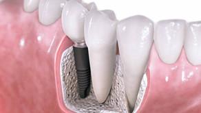 La salud del implante dental