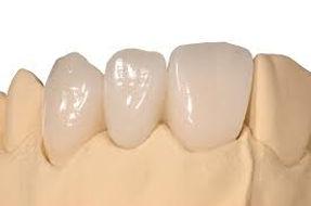 Ceramica EMAX. Clinica dental Dr. Roque Peñalver